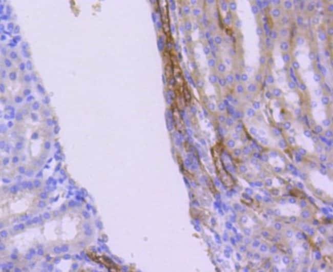 WASF2 Rabbit anti-Human, Clone: SC66-05, Novus Biologicals 100µL