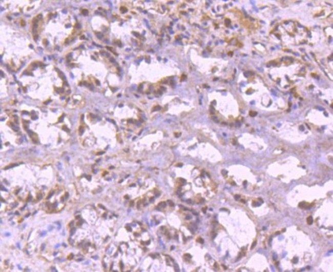 YY1 Rabbit anti-Human, Clone: SY29-01, Novus Biologicals 100µL