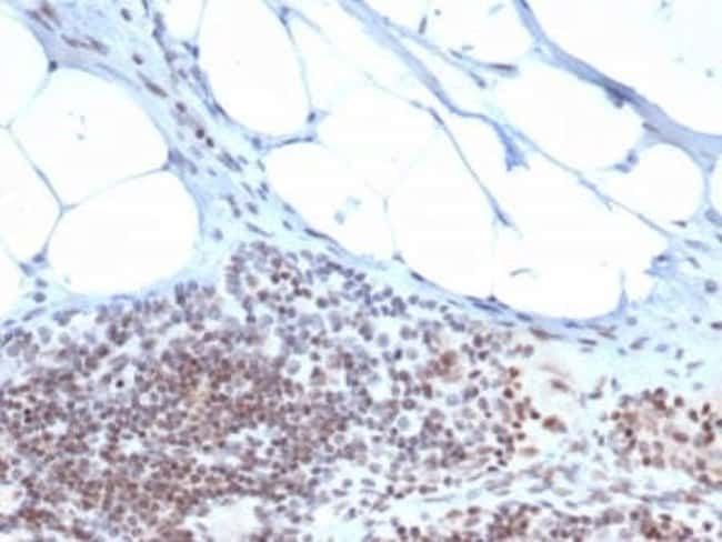 ZBTB46 Mouse anti-Human, Clone: PCRP-ZBTB46-2B8, Novus Biologicals:Antibodies:Primary