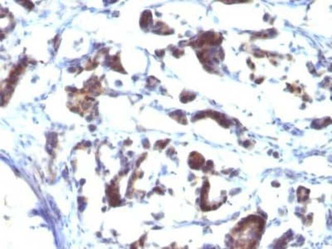 ZFYVE28 Mouse anti-Human, Clone: LST2/2426, Novus Biologicals:Antibodies:Primary
