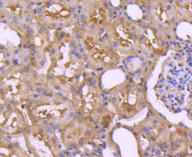 Caspase-7 Rabbit anti-Human, Clone: SD20-57, Novus Biologicals 100μL:Antibodies