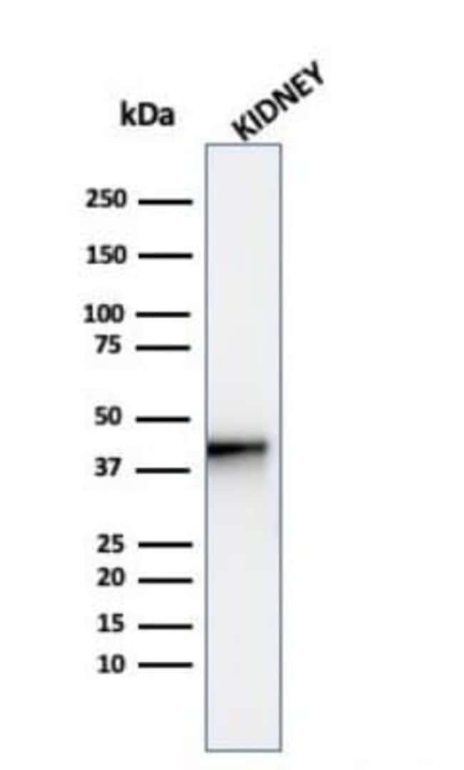 alpha-Methylacyl-CoA Racemase/AMACR Rabbit anti-Human, Clone: AMACR/4572R,
