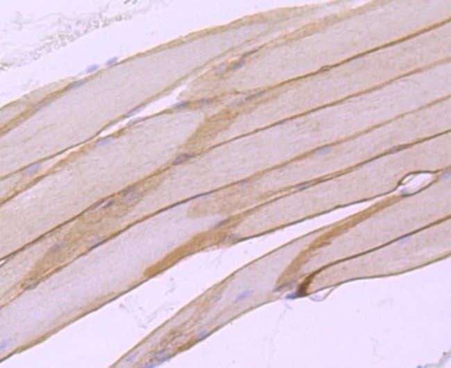 alpha-Sarcoglycan Rabbit anti-Human, Clone: JA51-81, Novus Biologicals