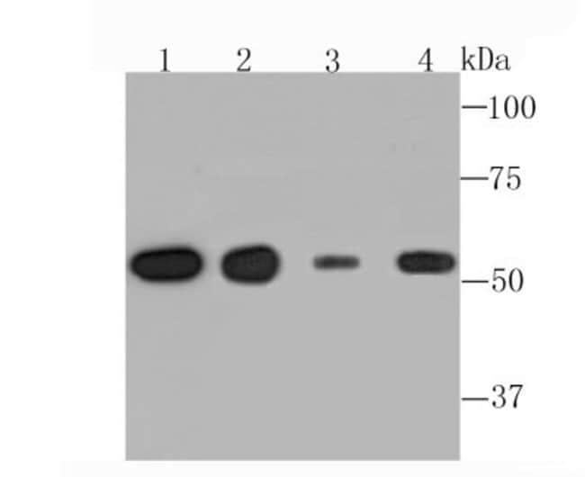 alphaTubulin4a Rabbit anti-Human, Clone: JM73-24, Novus Biologicals 100μL