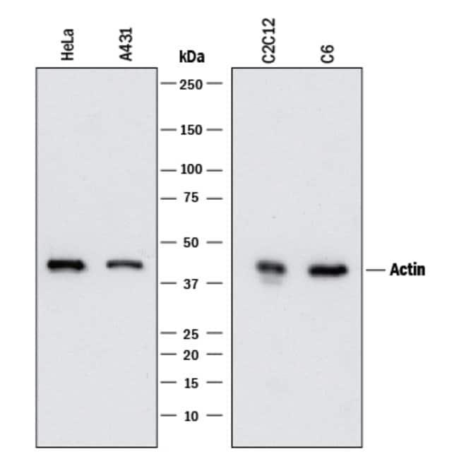 Actin Alpha 1 Cardiac Muscle, Mouse anti-Human,Mouse,Rat, Clone: 959615,