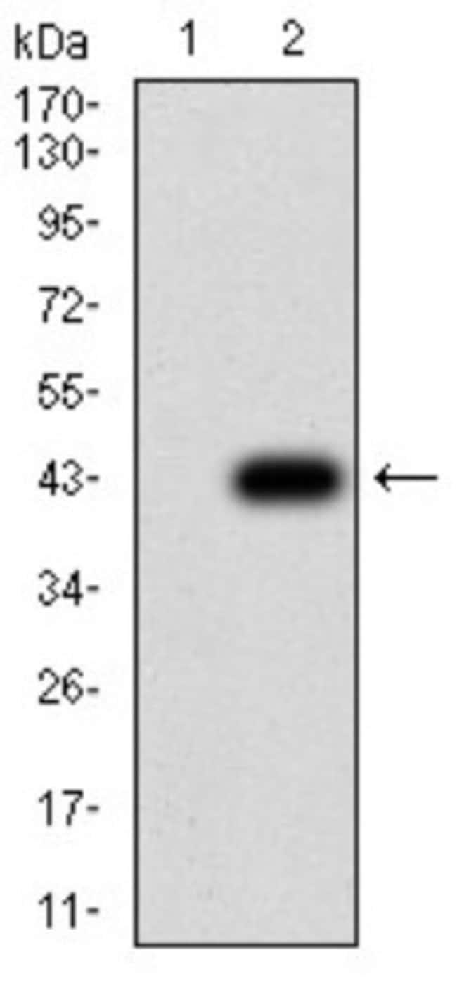 beta-2 Adrenergic R/ADRB2 Mouse anti-Human, Rat, Clone: 5G3B5, Novus Biologicals