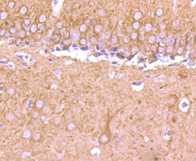 beta-IIITubulin Rabbit anti-Human, Clone: SP06-00, Novus Biologicals 100µL