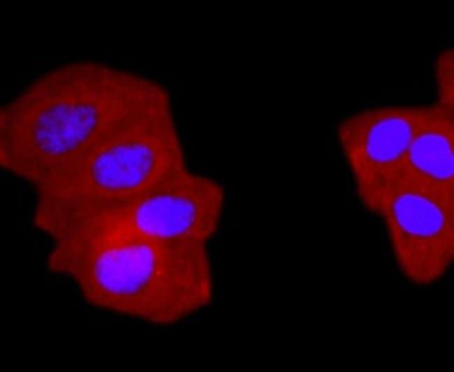 gammaTubulin Rabbit anti-Bovine, Clone: JF0972, Novus Biologicals 100µL