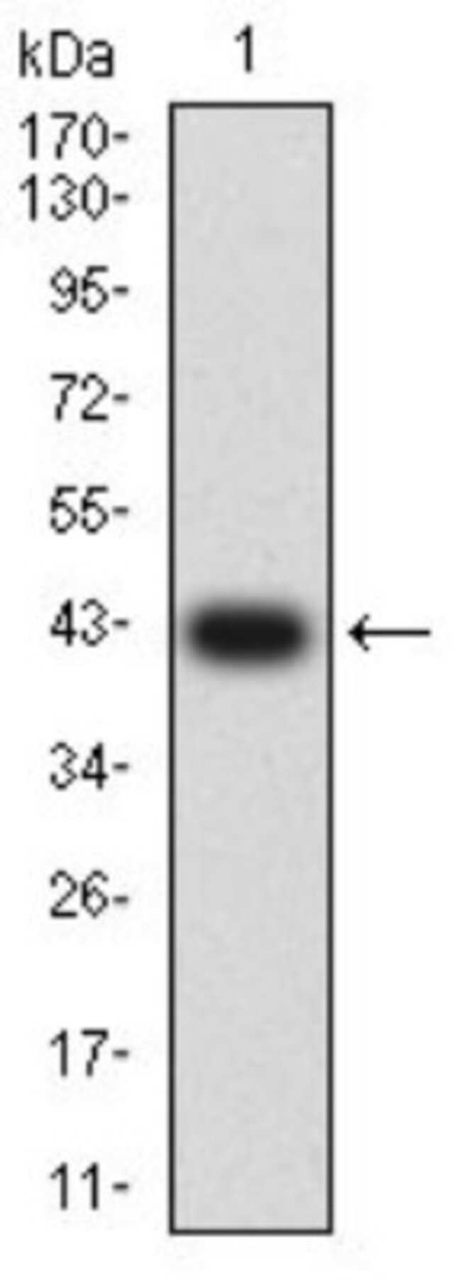 mGluR2 Mouse anti-Human, Clone: 4A10B9, Novus Biologicals 0.1 ml; Unconjugated:Antibodies