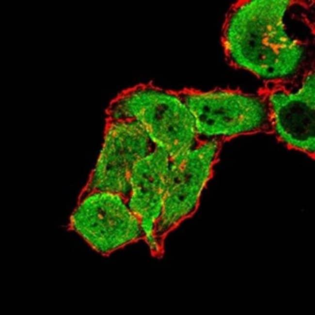 mGluR7 Mouse anti-Human, Clone: 7G8D3, Novus Biologicals 0.1 ml; Unconjugated:Antibodies