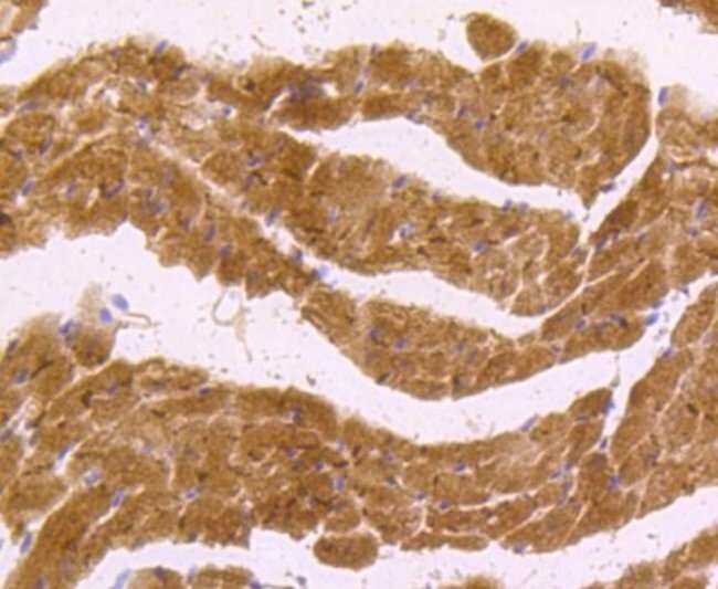 nNOS Rabbit anti-Human, Clone: ST520, Novus Biologicals 100μL:Antibodies