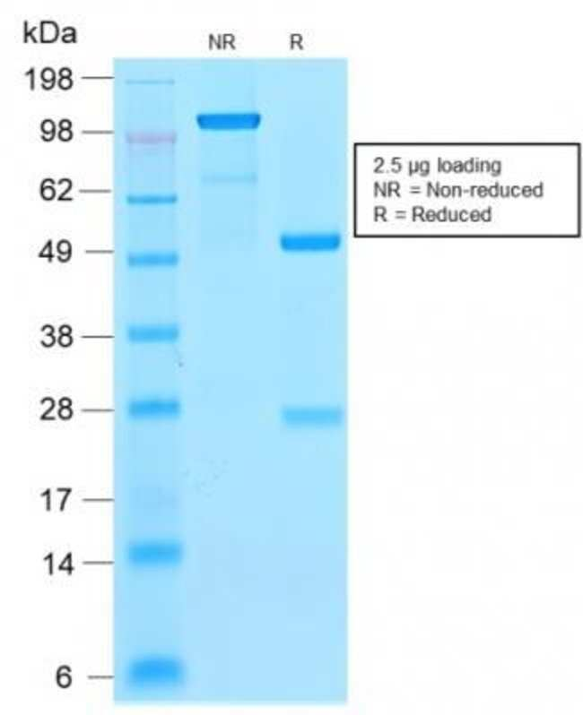 p21/CIP1/CDKN1A, Rabbit anti-Human, Clone: CIP1/2275R, Novus Biologicals:Antibodies:Primary
