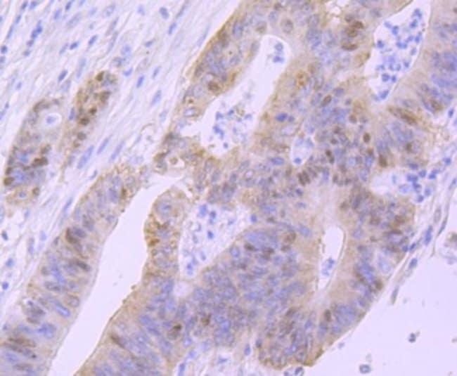 p53 Rabbit anti-Human, Clone: SY010-6, Novus Biologicals 100μL:Antibodies
