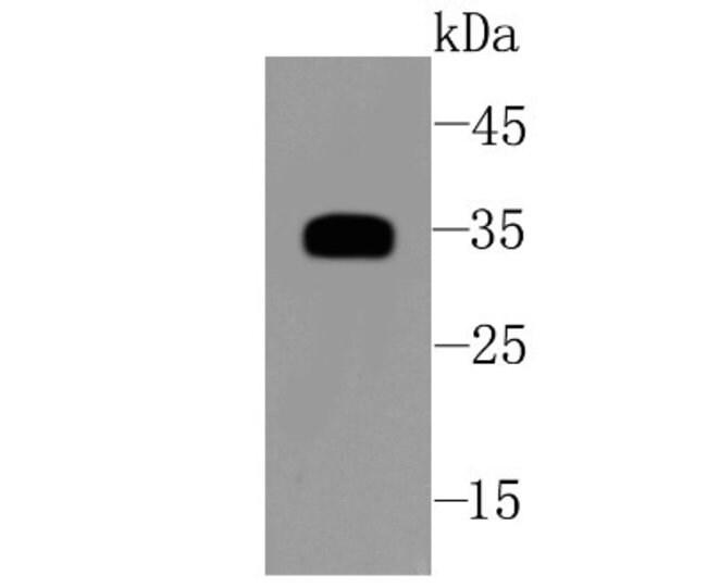 sFRP-1 Rabbit anti-Human, Clone: JA11-68, Novus Biologicals 100µL
