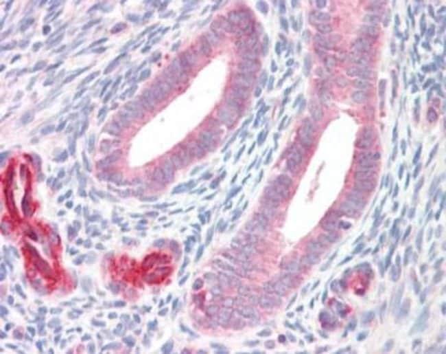 anti-ADAM33, Polyclonal, Novus Biologicals 0.1mL; Unlabeled:Life Sciences
