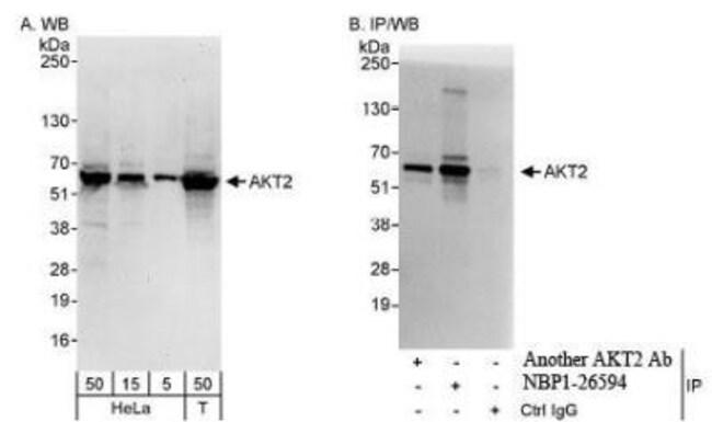 anti-Akt2, Polyclonal, Novus Biologicals 0.1mL; Unlabeled:Life Sciences