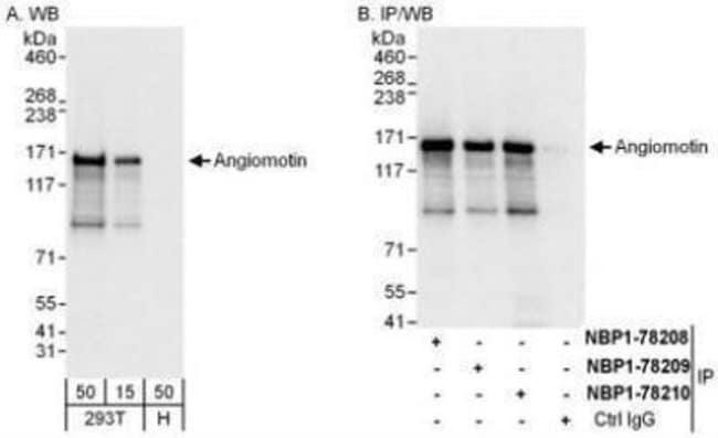 anti-AMOT, Polyclonal, Novus Biologicals 0.1mL; Unlabeled:Life Sciences