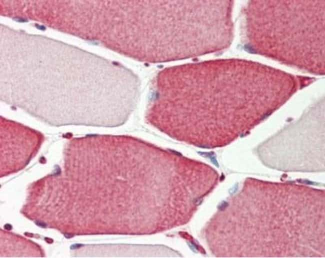 anti-APIP, Polyclonal, Novus Biologicals 0.1mL; Unlabeled:Antibodies