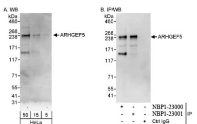 anti-ARHGEF5, Polyclonal, Novus Biologicals 0.1mL; Unlabeled:Life Sciences