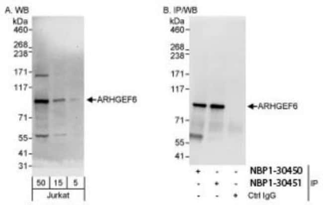 anti-ARHGEF6, Polyclonal, Novus Biologicals 0.1mg; Unlabeled:Life Sciences