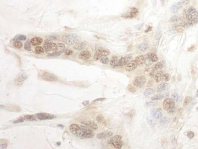 anti-ARID3B, Polyclonal, Novus Biologicals 0.1mg; Unlabeled:Life Sciences