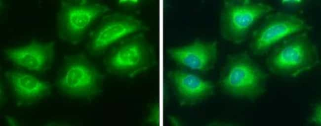 anti-ATP Citrate Lyase, Polyclonal, Novus Biologicals 0.1mg; Unlabeled:Life