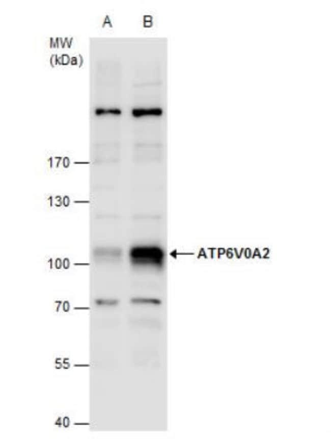 anti-ATP6V0A2, Polyclonal, Novus Biologicals 0.1mg; Unlabeled:Life Sciences