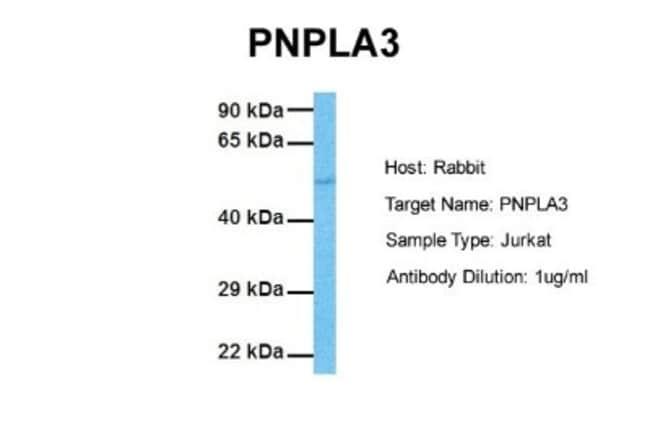 anti-Adiponutrin/PNPLA3, Polyclonal, Novus Biologicals 0.05mg; Unlabeled:Life