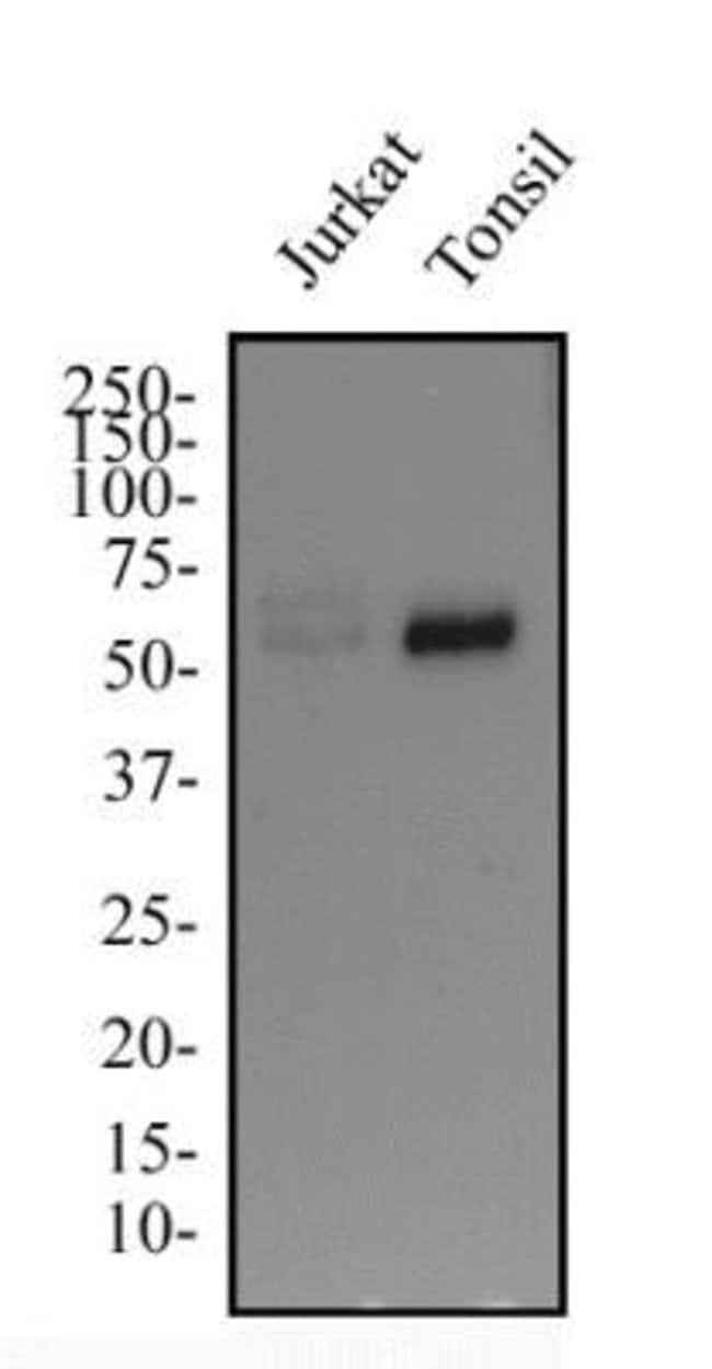 anti-IKZF3, Polyclonal, Novus Biologicals:Antibodies:Primary Antibodies