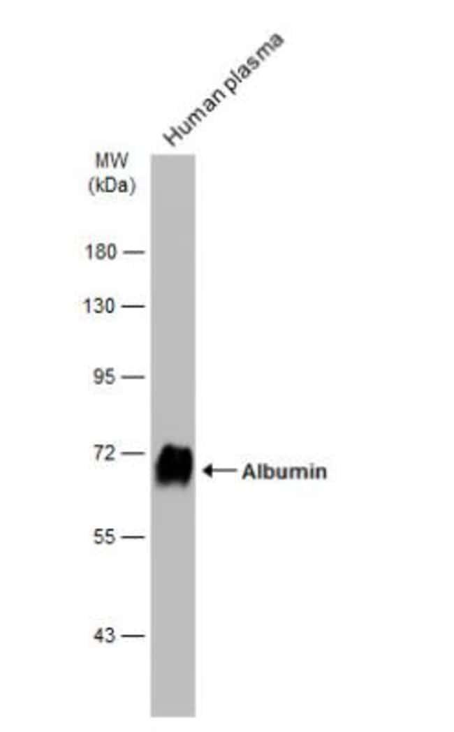 anti-Albumin, Polyclonal, Novus Biologicals 0.1mg; Unlabeled:Life Sciences
