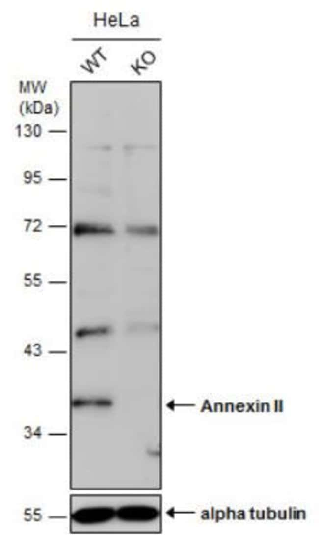 anti-Annexin A2, Polyclonal, Novus Biologicals 0.1mg; Unlabeled:Life Sciences
