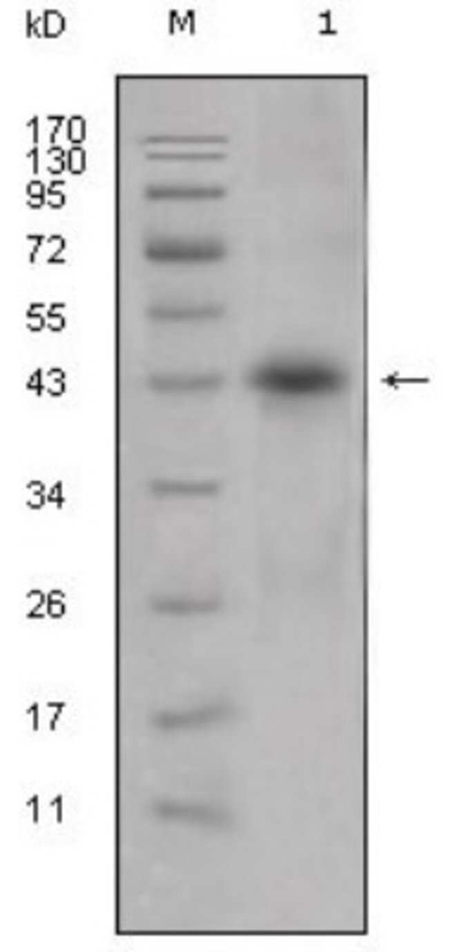 anti-Apolipoprotein L1, Clone: 1D4, Novus Biologicals 0.1mL; Unlabeled:Antibodies