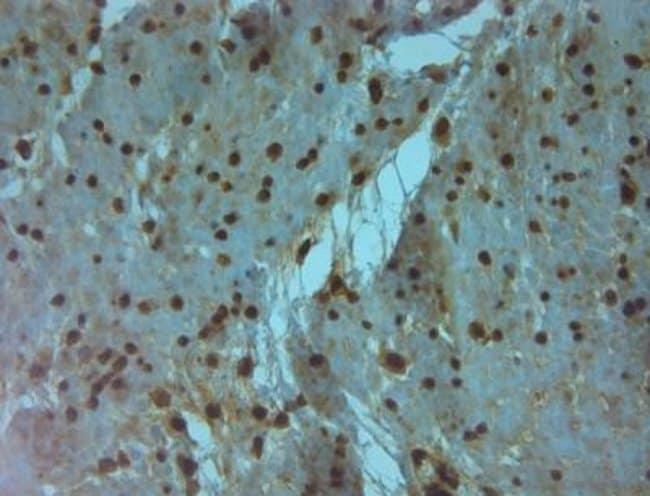 anti-Aquaporin-9, Polyclonal, Novus Biologicals 0.1mL; Unlabeled:Life Sciences