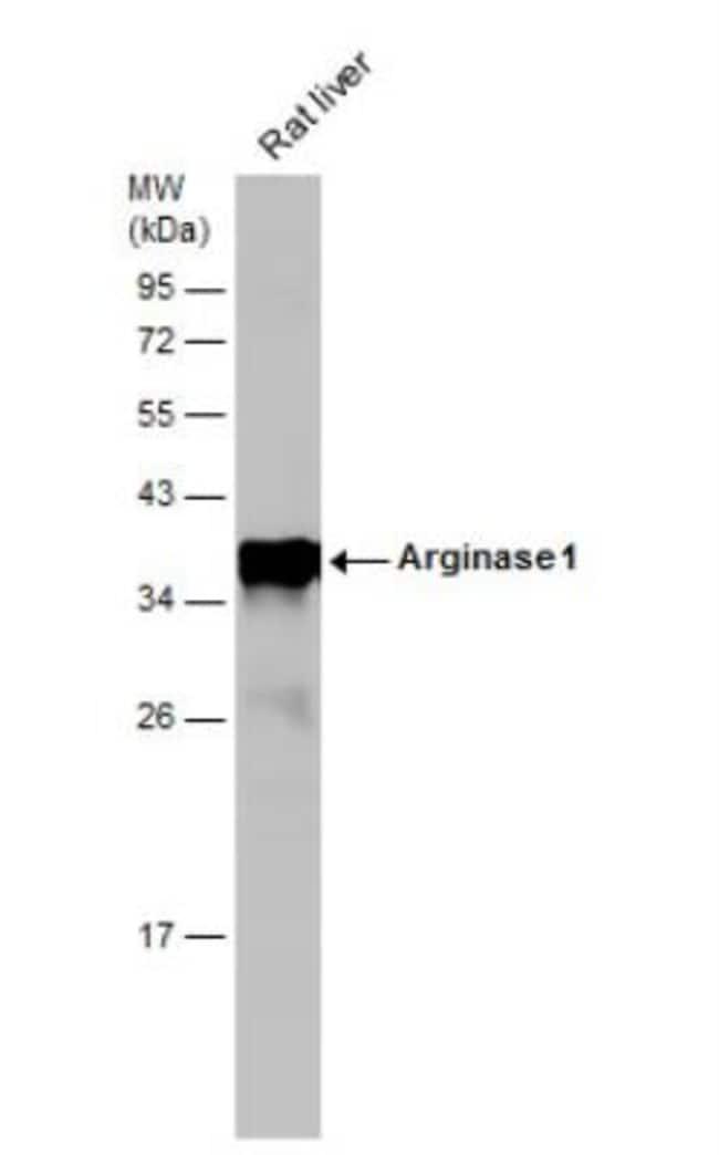 anti-Arginase 1/ARG1/liver Arginase, Polyclonal, Novus Biologicals 0.1