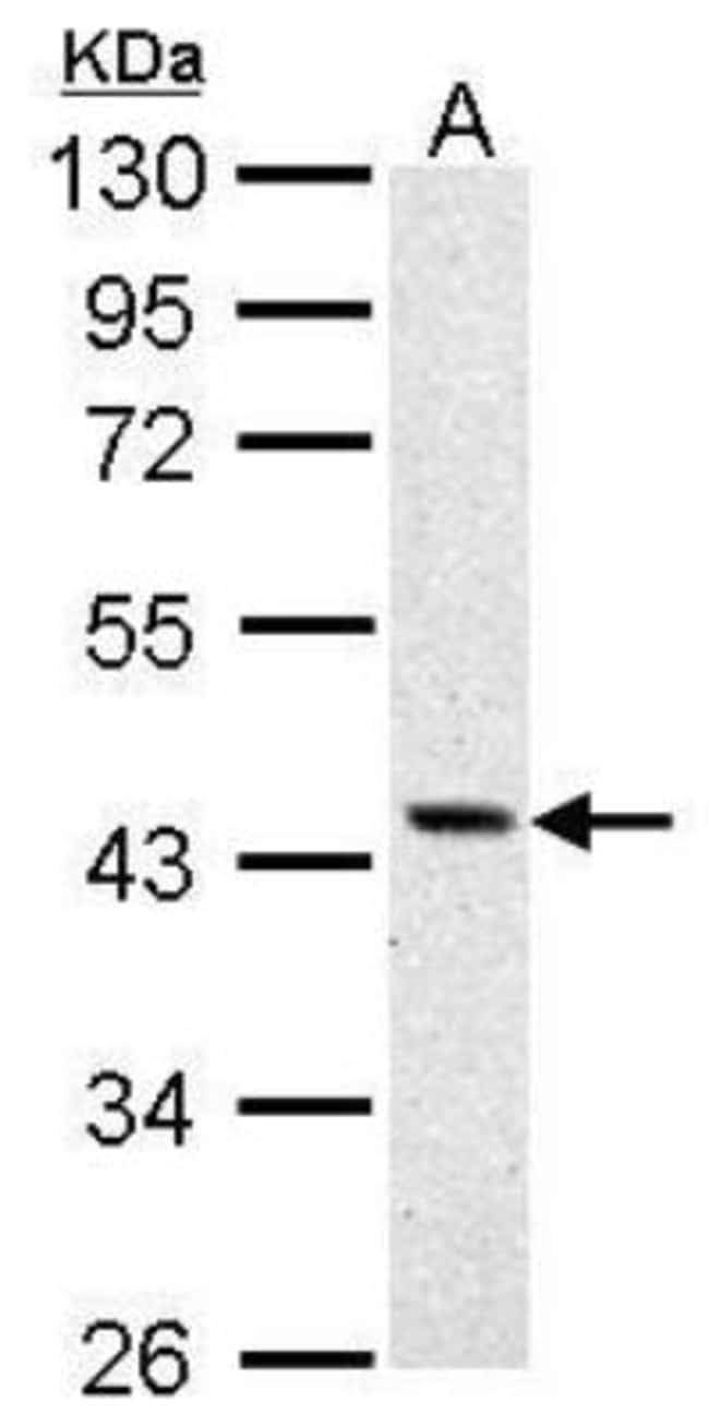 anti-Argininosuccinate Synthase, Polyclonal, Novus Biologicals 0.1mL; Unlabeled:Life