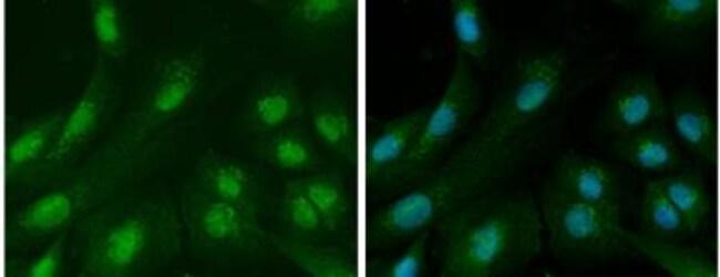 anti-Ataxin-3, Polyclonal, Novus Biologicals 0.1mL; Unlabeled:Antibodies