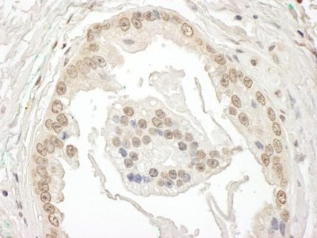 anti-BRD7, Polyclonal, Novus Biologicals 0.1mg; Unlabeled:Life Sciences