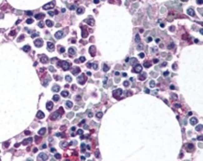 anti-CD11b/c, Polyclonal, Novus Biologicals:Antibodies:Primary Antibodies