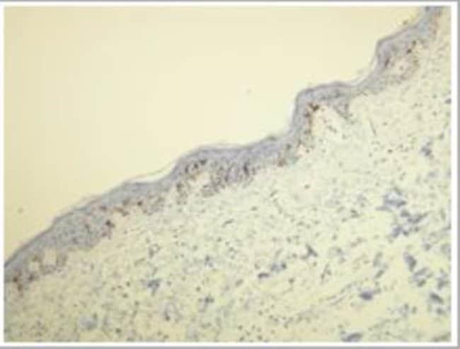 Rabbit anti-CD1a, Clone: L21-A, Novus Biologicals:Antibodies:Primary Antibodies