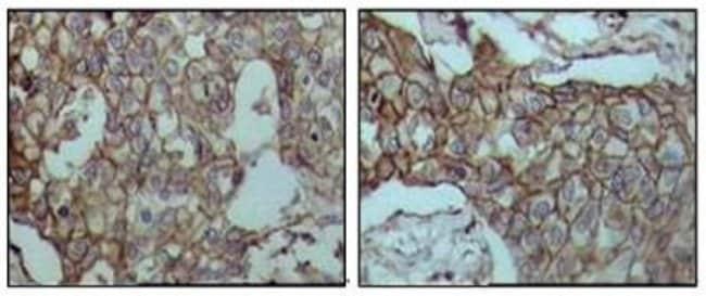 anti-CD44, Clone: 8E2F3, Novus Biologicals 0.025mL; Unlabeled:Life Sciences
