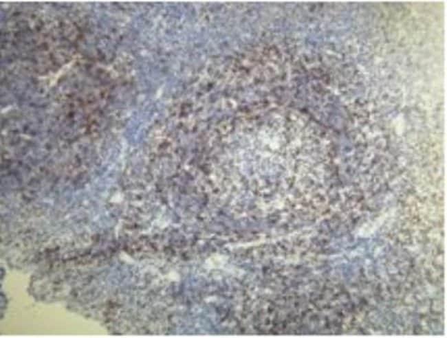 Rabbit anti-CD5, Clone: A25-G, Novus Biologicals:Antibodies:Primary Antibodies