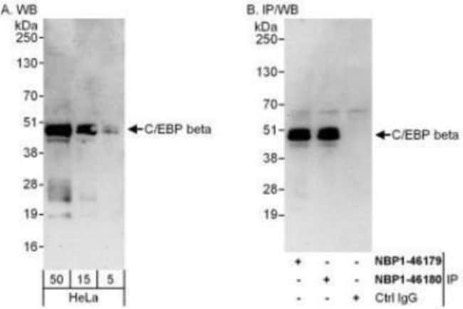 anti-CEBP Beta, Polyclonal, Novus Biologicals 0.1mg; Unlabeled:Life Sciences