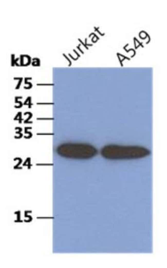 Mouse anti-CKAP1, Clone: 1F6, Novus Biologicals:Antibodies:Primary Antibodies