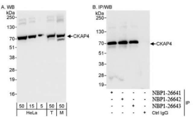 anti-CKAP4/p63, Polyclonal, Novus Biologicals 0.1mL; Unlabeled:Life Sciences