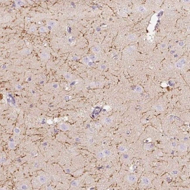 anti-CNPase, Polyclonal, Novus Biologicals 0.1mL; Unlabeled:Life Sciences
