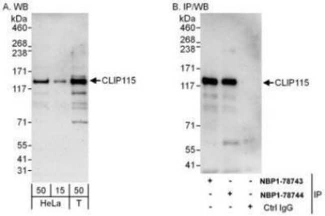 anti-CYLN2, Polyclonal, Novus Biologicals 0.1mg; Unlabeled:Life Sciences