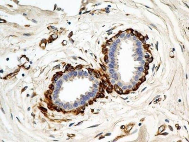 Mouse anti-Calnexin, Clone: 1C2.2D11, Novus Biologicals:Antibodies:Primary