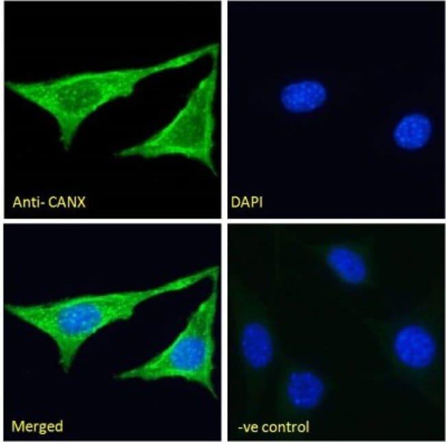 anti-Calnexin, Polyclonal, Novus Biologicals 0.1mg; Unlabeled:Life Sciences