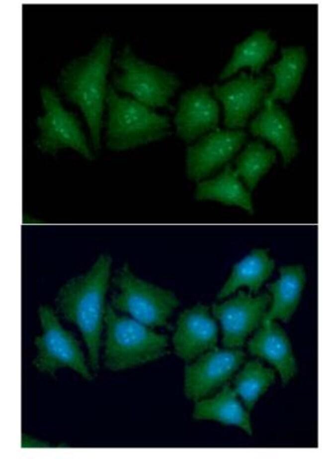 anti-Casein Kinase 1 alpha, Clone: 2E2, Novus Biologicals 0.1mL; Unlabeled:Antibodies