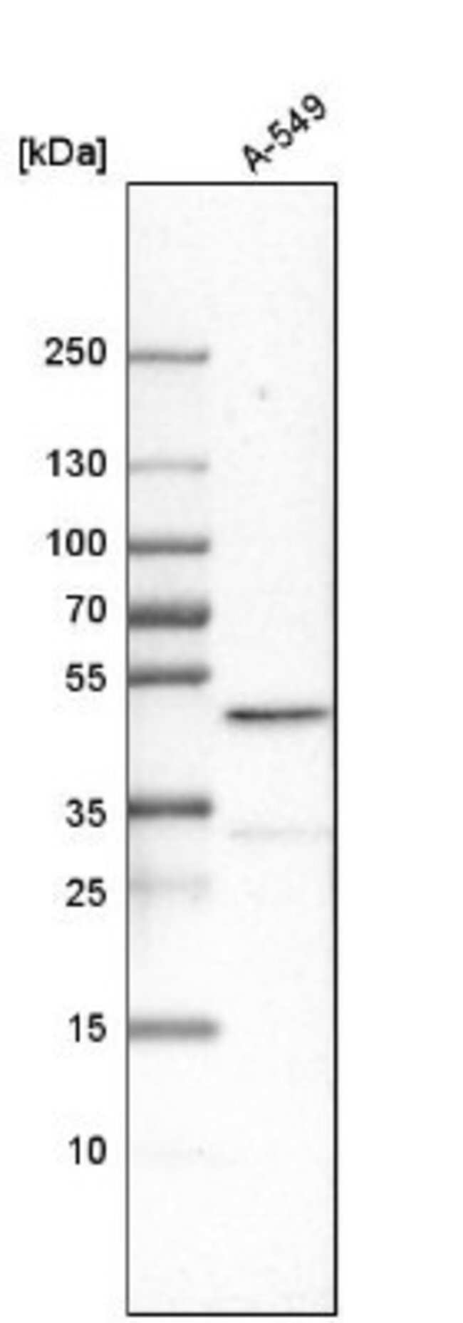 anti-Cbx8, Polyclonal, Novus Biologicals 0.1mL; Unlabeled:Life Sciences